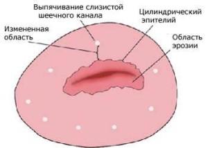 eroziya-sheyki-matki